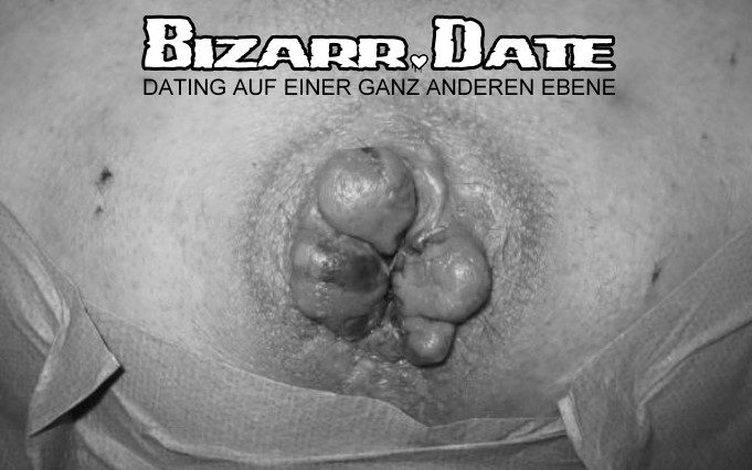 BIZARR DATE mit Hämorrhoiden
